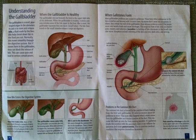 Surgery Is Scheduled - Gallbladder